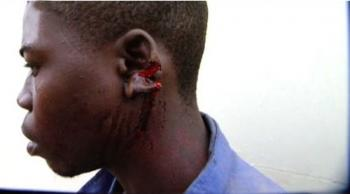 Douglous Mwila 24, had his ear sliced by his supervisor