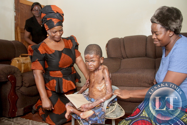 First Lady when she visited 9 year-old Joshua Mulikelela suffering from genetic skin disorder in Lusaka's Kaunda square on Saturday, December 5,2015 . Looking on is Joshua's mother Stella -Pictures by THOMAS NSAMA